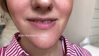 Увеличение губ. Врач косметолог Халима Беляева