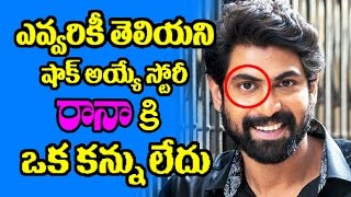 SHOCKING! Rana Can't See with His RIGHT EYE | Latest Celebrity Updates | SV Telugu TV