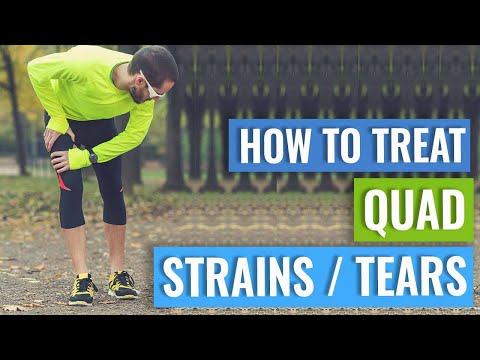 How To Treat A Quad Strain or Tear