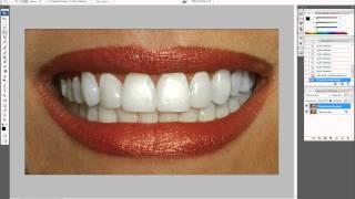 Как отбелить зубы в фотошопе.