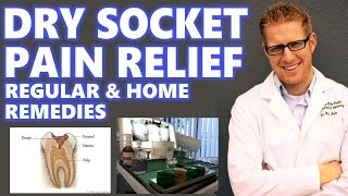Dry Socket Treatment: Home Remedies for Relief of your Pain after Tooth Extraction *My Wisdom Teeth