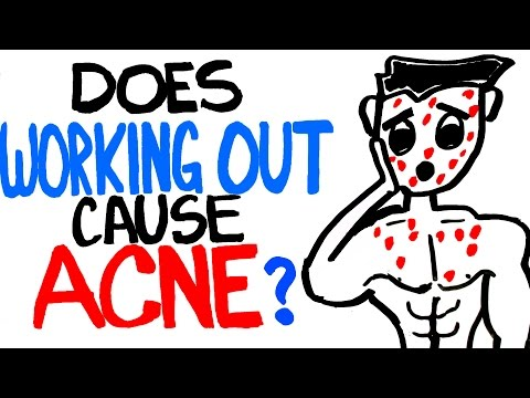 Does Working Out Cause Acne? Can Sweating Be the Reason?