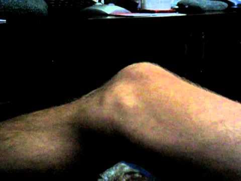 ALS Leg Fasciculations Example