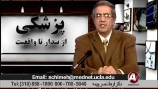 فراموشی دکتر فرهاد نصر چیمه  Amnesia Dr Farhad Nasr Chimeh