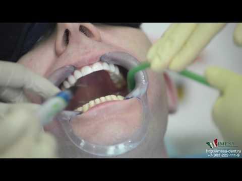 Люминиры - голливудские виниры без обточки зубов.