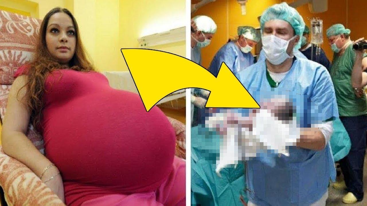 Sarcina 37 săptămâni prima sarcină. Cercetări și analize similare