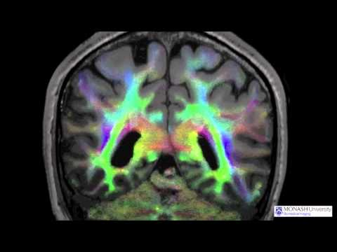 Direction-encoded track density-weighted image - Diffusion MRI