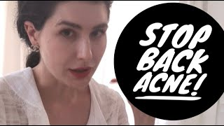 Bacne? Back acne! The best and most useful tips ever (by a dermatologist)🇨🇭