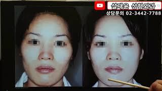 안면윤곽 또는 광대수술 후 부기가 안빠지는 원인은 볼처…
