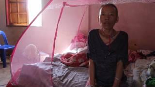 Pog Nplaum mob Cancer | Cua Yaj | Nang Ed Hmong (Pog Nplaum)