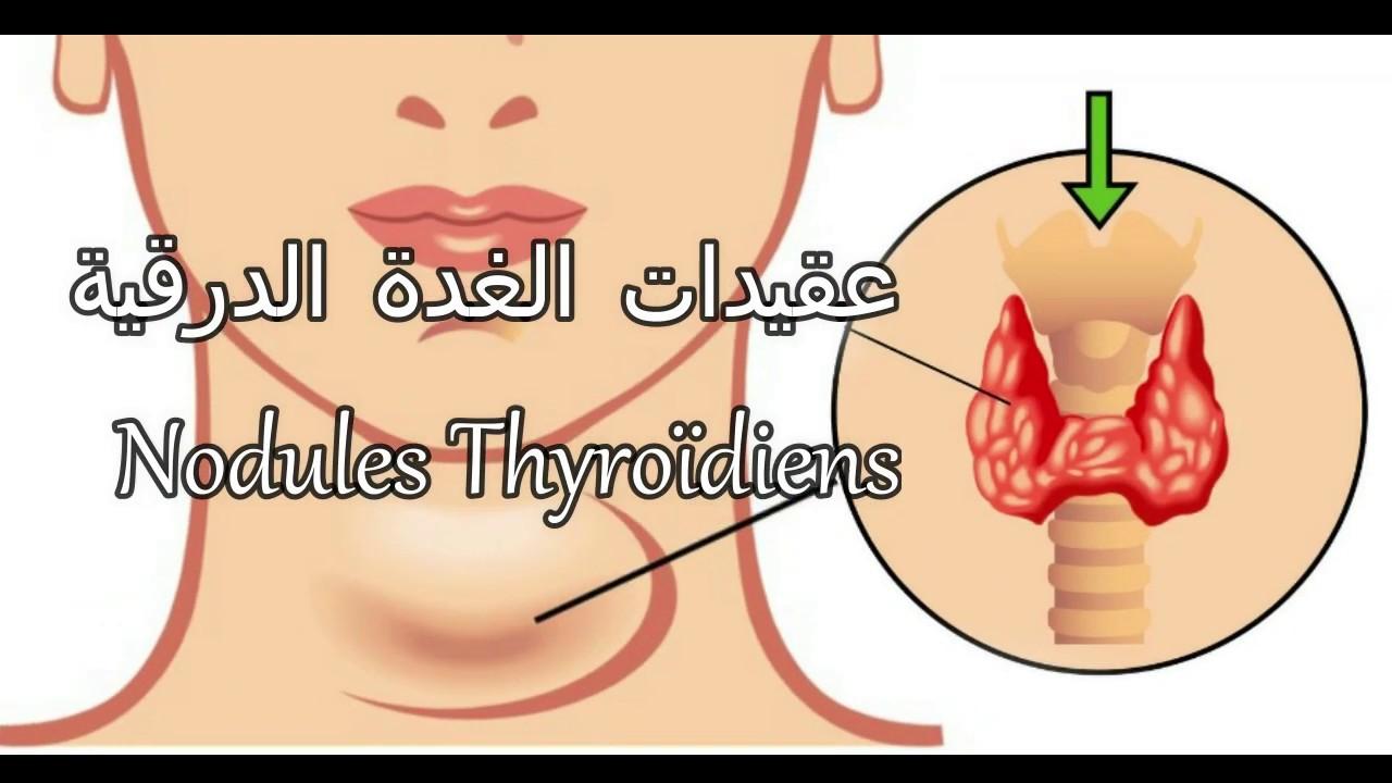 Nodules Thyroidiens عقد أوعقيدات الغدة الدرقية خبيثة أم حميدة ساخنة أم باردة Youtube
