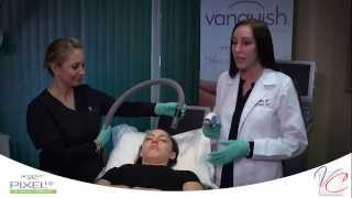 Pixel RF Skin Tightening & Resurfacing - The Vein & Cosmetic Center of Tampa Bay Thumbnail