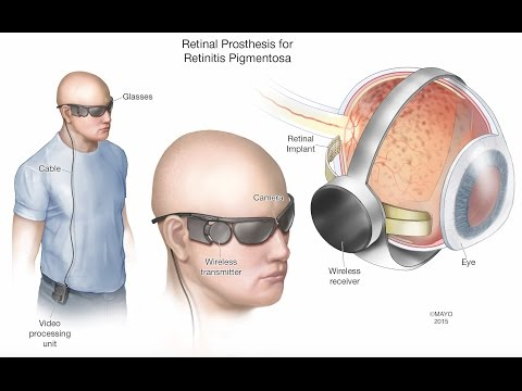 Retinal Prosthesis - Mayo Clinic