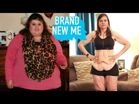 My 260lbs Weight Loss Left Me With 20lbs Of Loose Skin | BRAND NEW ME