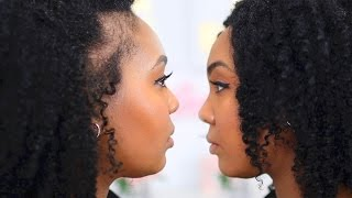 Postpartum Hair Loss & Shedding   Natural Hair