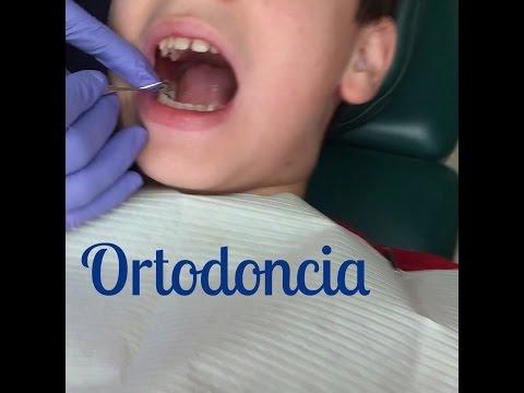 Colocación De Separadores(Pre Braces) | Ortodoncia