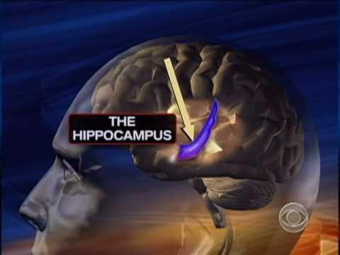 Diabetic Brain Damage Risk