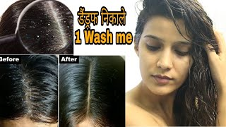 how to stop dandruff fast dandruff treatment super style tips