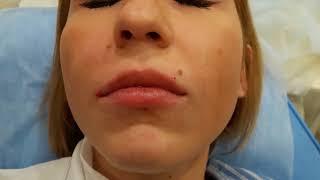 Аириском обучение практика по коррекции формы губ филлеры волюм