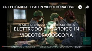 CRT EPICARDIAL LEAD IN VIDEOTHORACOSCOPY - ANDREA DROGHETTI