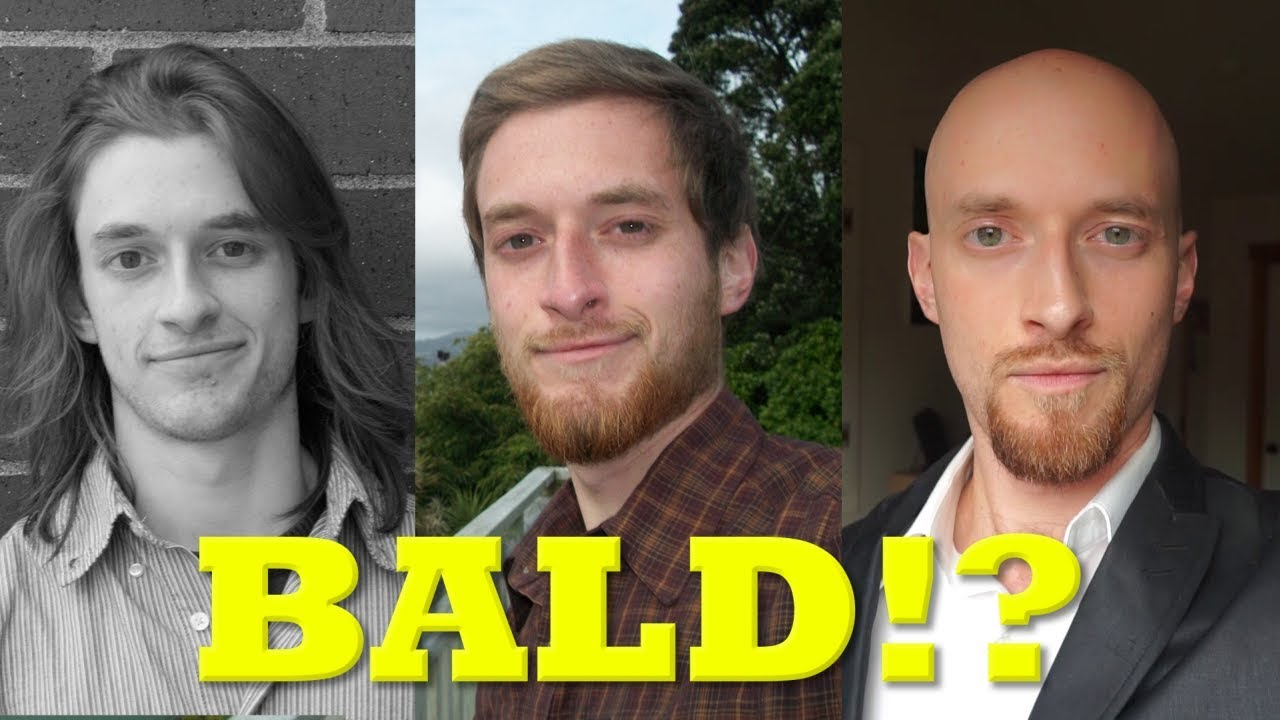 Is a man's life over when he goes bald?