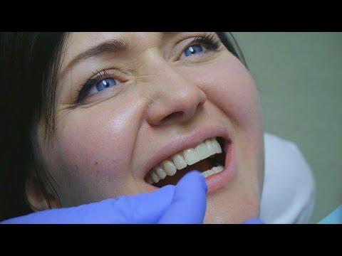 Как снимают металлокерамические коронки с передних зубов видео