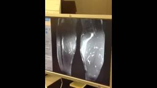 MRI scan of my Legs