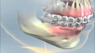 Having Orthognathic Surgery