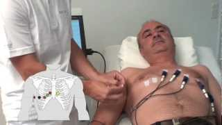 SCHILLER electrode placement for resting ECG with Biotabs