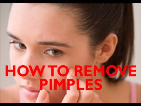 How To Remove Pimples From Face In Tamil