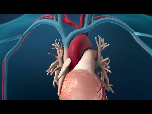 Coronary Angioplasty - Radial Access