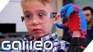 Der Junge mit der selbstgebauten Prothese | Galileo | ProSieben