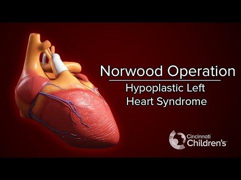 Medical Animation: Norwood Operation | Cincinnati Children's