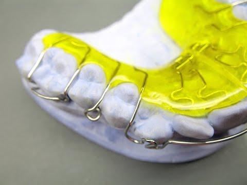 Herstellung einer Dehnplatte KFO Kieferorthopädie Orthodontics active plate Labial Bow Adams clasp
