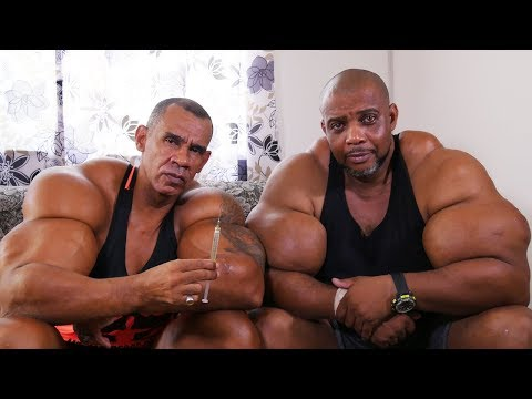 'Hulk' Brothers Risk Death By Injecting Muscle-Building Chem