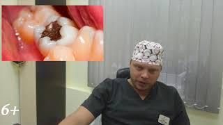 Осторожно вредно для здоровья. В пломбе амальгама есть ли ртуть.