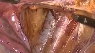 ligadura arteria uterina por laparoscopia