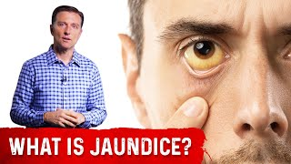 What is Jaundice? (In Simple Terms)