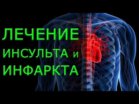 Лечение ишемического инсульта, последствия, профилактика