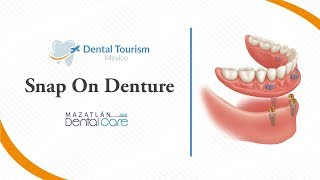 Snap On Denture Mazatlan - Dental Tourism Mexico