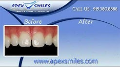 Cosmetic Dentistry Cary Nc | Cosmetic Dentist Cary Nc