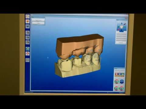Dr  Johnston (a Denver Dentist)  Describes Cerec Part 2 - Software