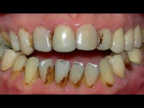 Como Tirar Dos Dentes Nicotina E Manchas Do Cigarro Youtube