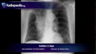 Golden S sign - radiology video tutorial (x-ray)