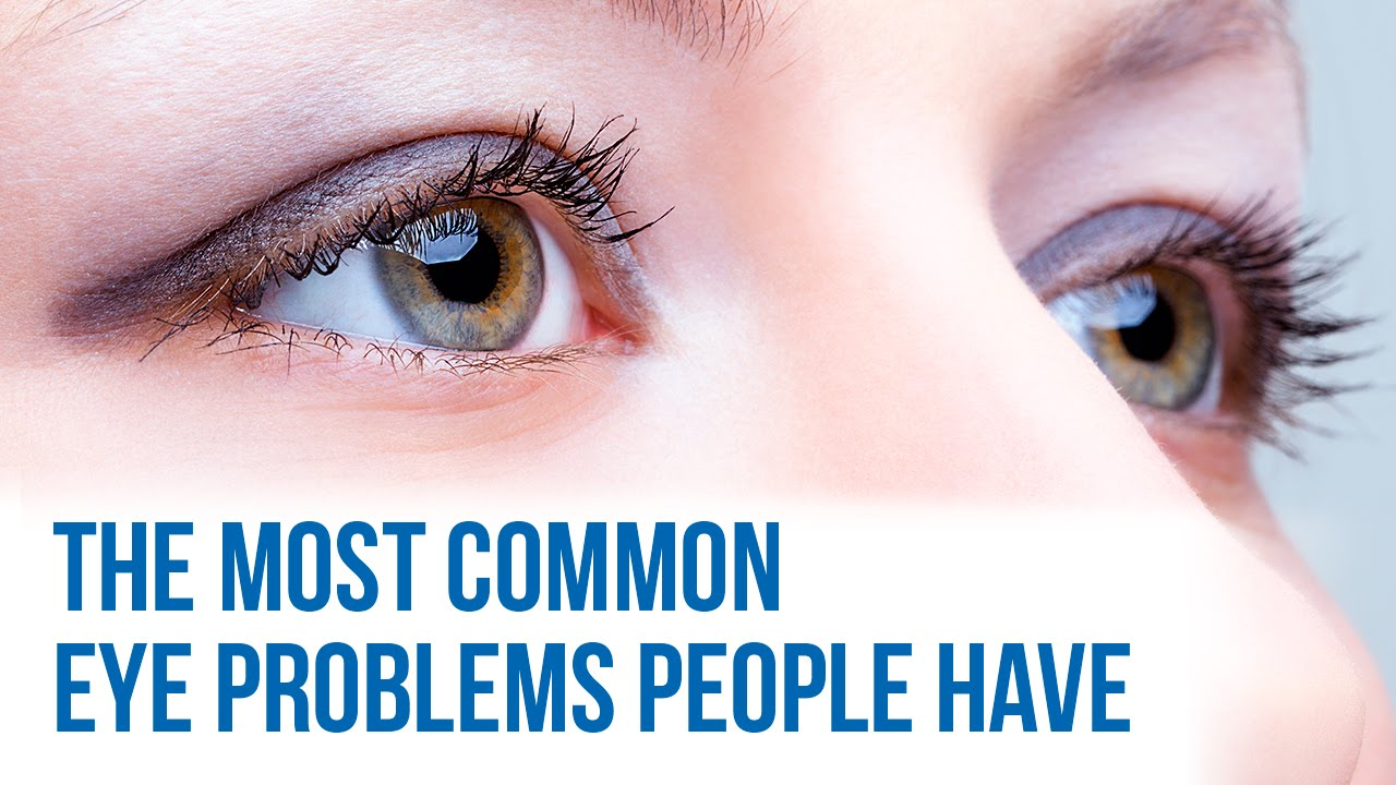 common eye problems youtube