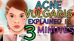 hqdefault - Causes Treatments Acne Vulgaris