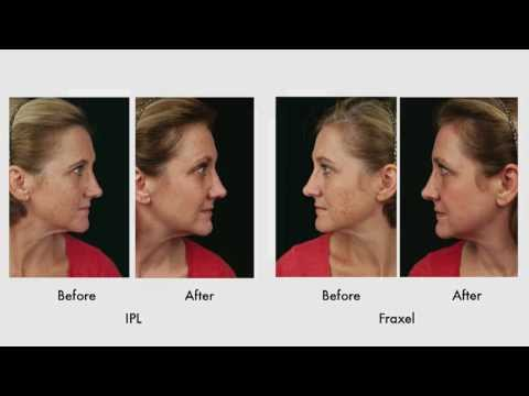Treatment of Sun Damage with IPL vs. Fraxel