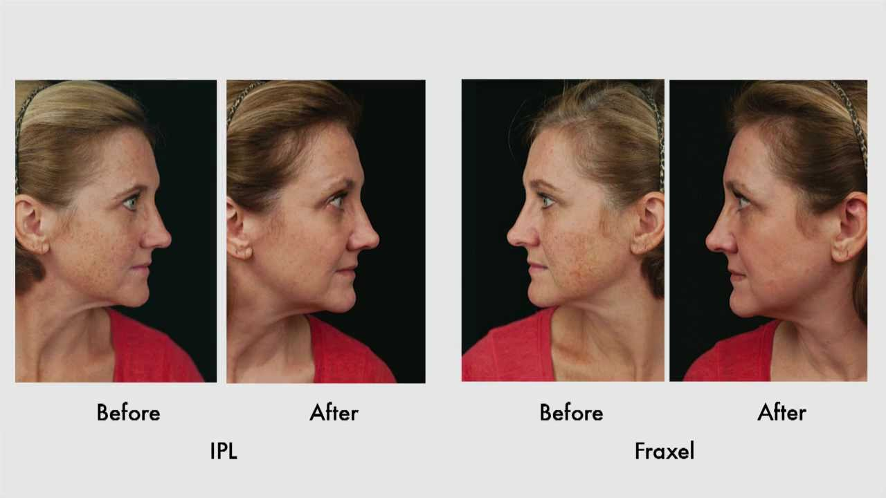 SUN DAMAGE RECOVERY – PART 5: Review of Results with IPL vs
