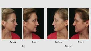 Treatment of Sun Damage with IPL vs. Fraxel
