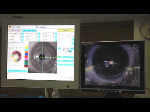 Photo-point-symmetric corneal remodeling for keratoconus treatment by using IOP as medium.